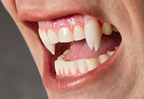 Viper Split Deluxe Vampier tanden-3